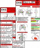 ekg-basic-set-large-3-4.jpg